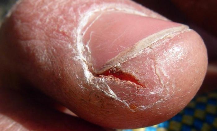 Лекарство от грибка на ногах ирунин