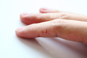 почему трескается кожа на пальцах рук лечение