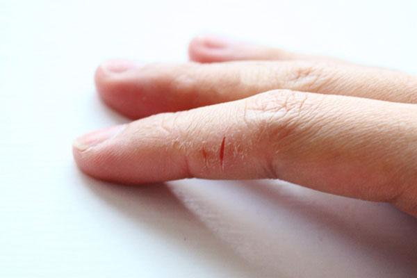 Гель для ногтей лечат отзывы