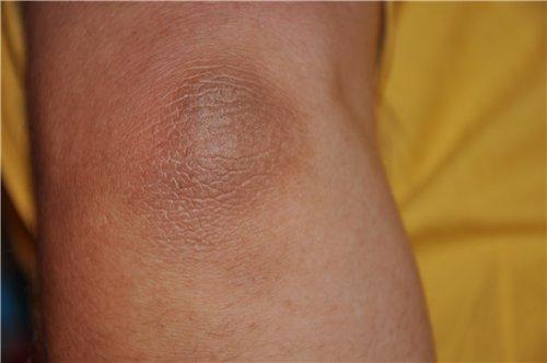 Лечение остеохондроза в казахстане санаторий