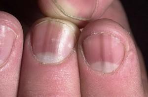 деформация ногтевой пластины на руках причины