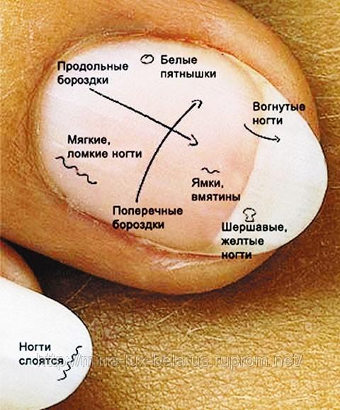 От чего деформируются ногти на руках