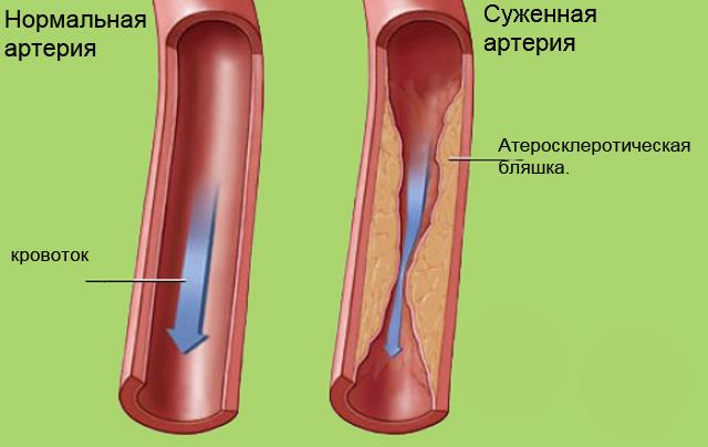настойка от холестерина с чесноком и водкой