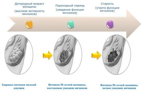 Сухость и жжение в интимной зоне у женщин лечение при климаксе