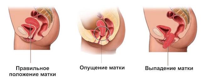 plasticheskie-operatsii-vlagalisha-spb