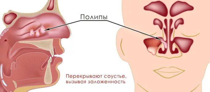 Полип в носу симптомы и лечение фото