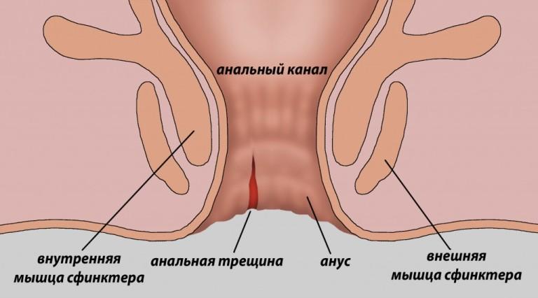 analnaya-treshina-sredstvo