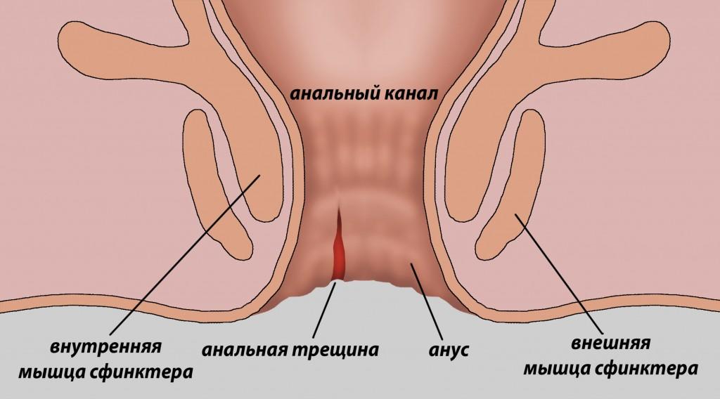 Больной анальный секс порно 132