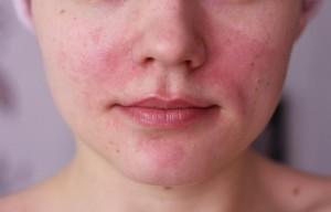 эритема фото симптомы и лечение