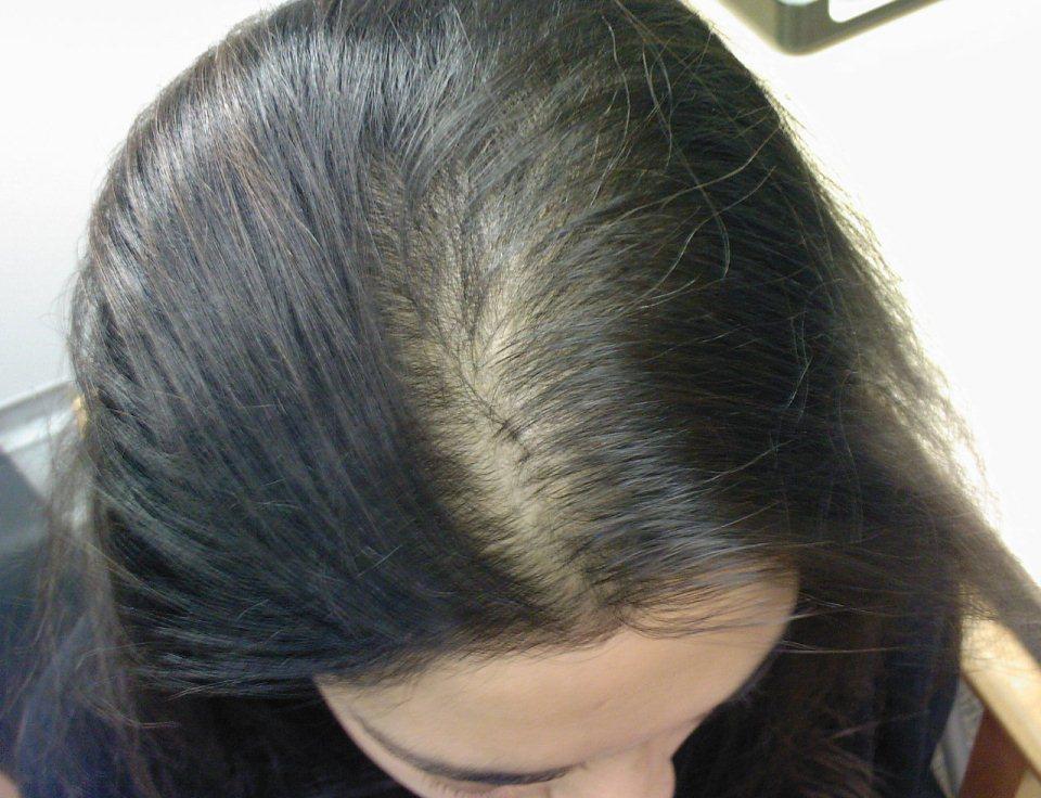 гипофиз и выпадение волос