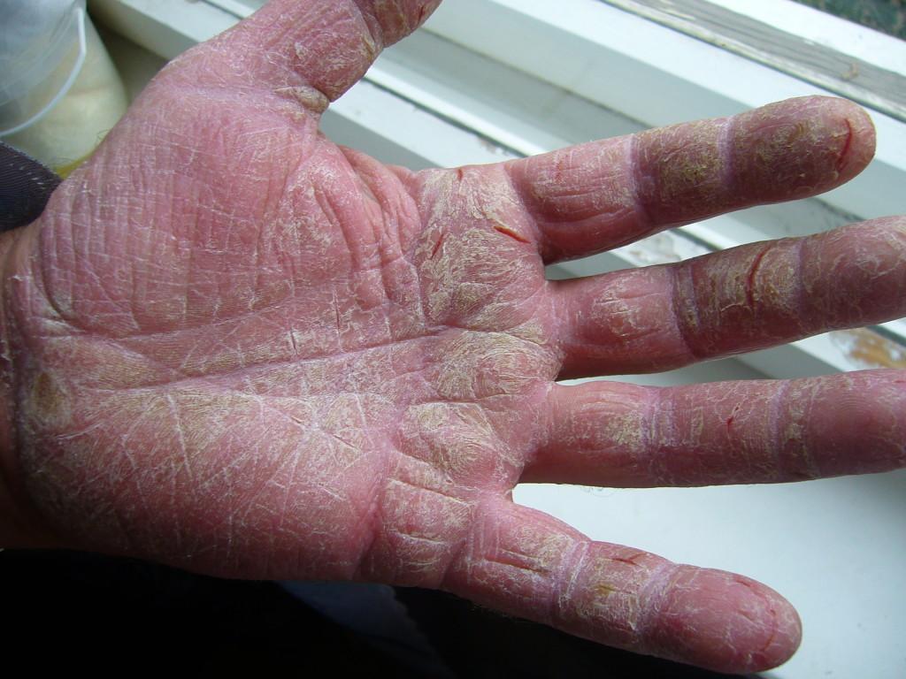Болезни кожи рук лечение