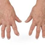 суставы на руках болят и опухают суставы причины какой болезни