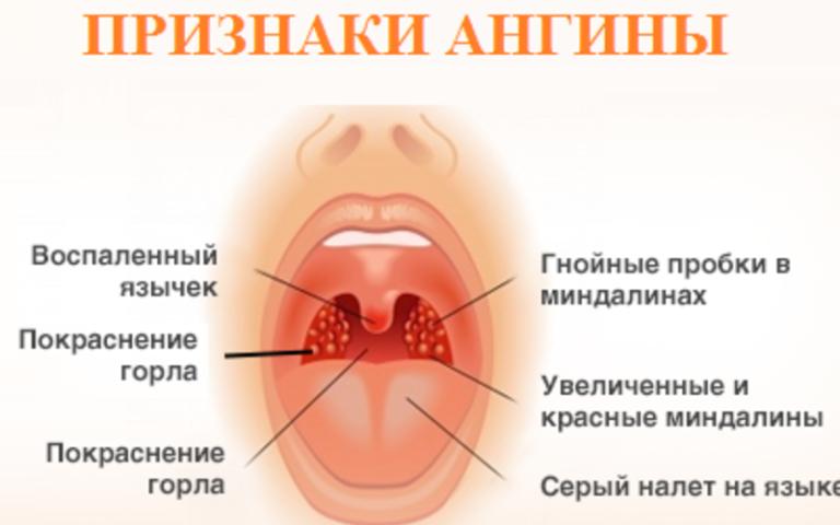 Как в домашних условиях лечить фолликулярную ангину у 877
