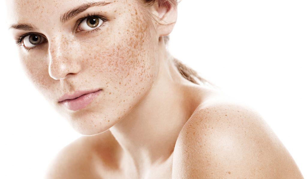 почему появляются пигментные пятна на лице и как от них избавиться