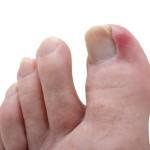 ноготь врастает в палец на ноге что делать в домашних условиях